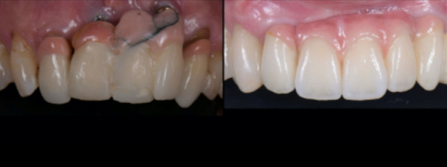 How to Use Preexisting Implants in Redesigning a Full-Arch Reconstruction