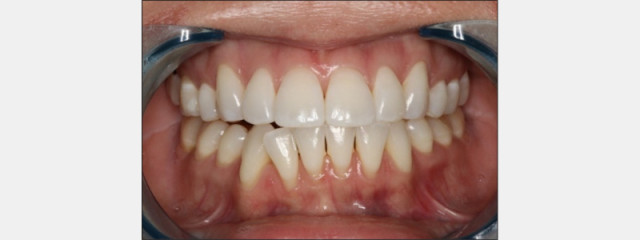 When Dental Patients Pop the Question 'Can You Help Me?'
