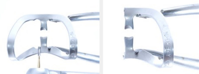 Use a 212 Modified Clamp To Restore Cervical Carious & NCCLs on Adjacent Teeth