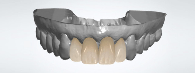 Restorative Movement of Mal-aligned Teeth: A Collaborative Approach
