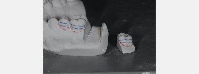 Simple In-Office Technique for Closing Open Molar Contacts