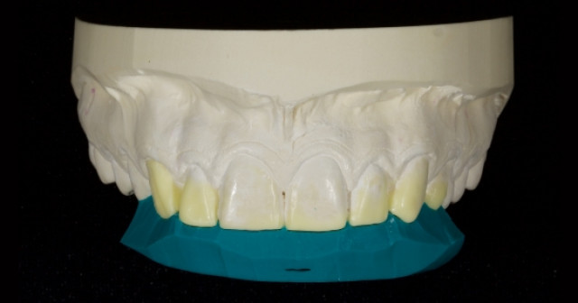 Planning the Class IV: The Workhorse of Cosmetic Dentistry — Part 1