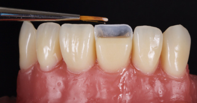 Planning the Class IV: Workhorse of Cosmetic Dentistry – Part 3