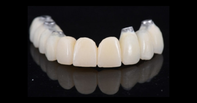 Facilitating Treatment Utilizing Pre-Existing Implant Components