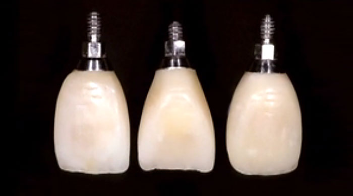 Classic Collection:  SINGLE TOOTH IMPLANT TEMPORARIES