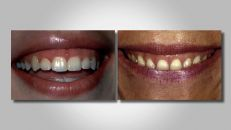 Management of Gingival Levels: Part 1