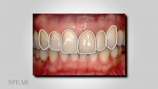Ortho vs. Restorative to Correct Malaligned Teeth - Six Key Questions (part 2)