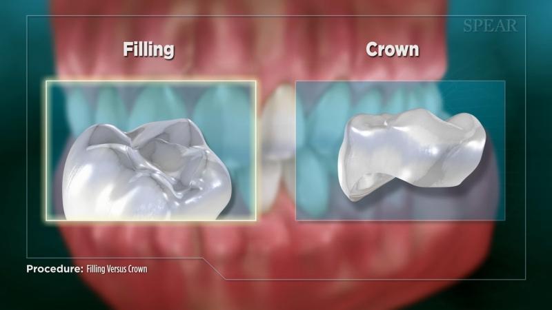 Filling vs Crown (Impression)
