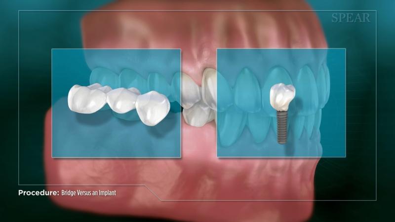 Bridge vs an Implant