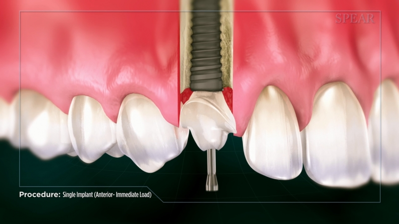 Single Implant(Anterior)