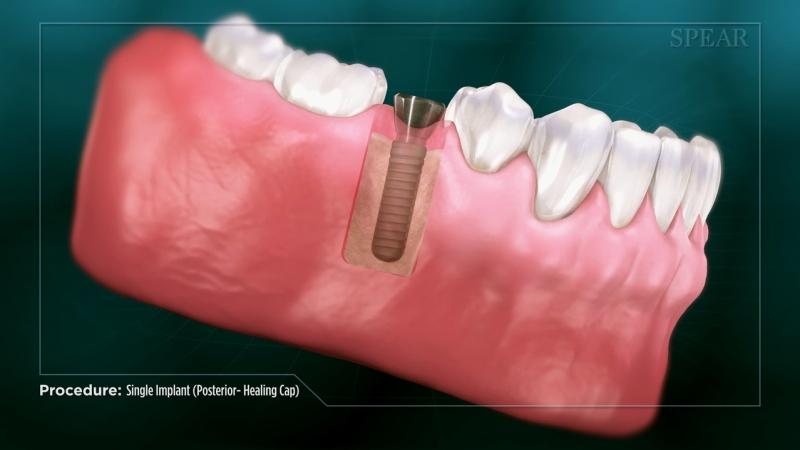Single Implant(Posterior)