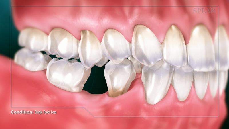 Single Tooth Loss