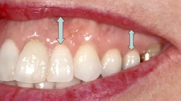 Diagnosing and Treating Excess Gingival Display
