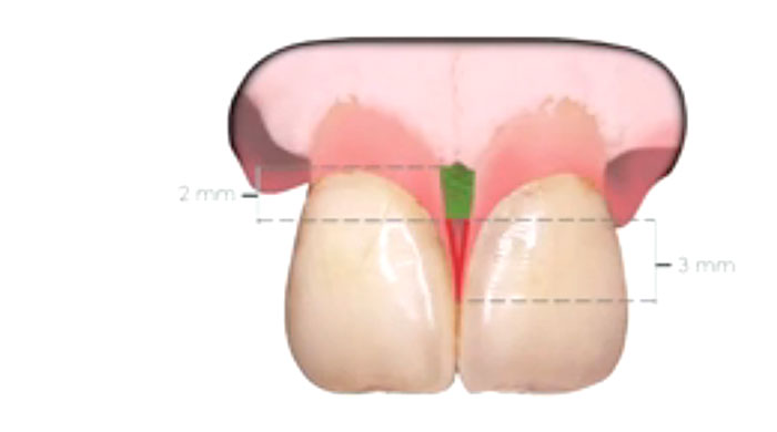 Papilla and Gingival Embrasure Management