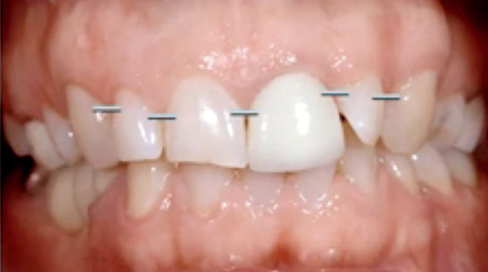 Ortho vs Restorative Alignment of Teeth
