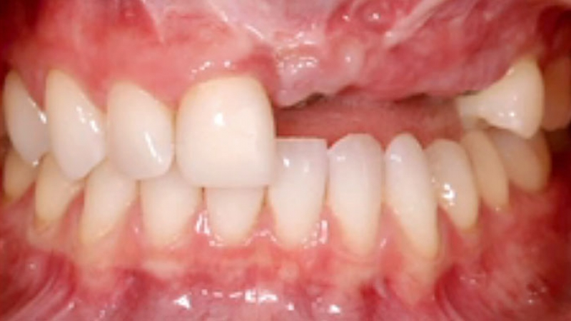 Biologic Challenges with Multiple Missing Anterior Teeth