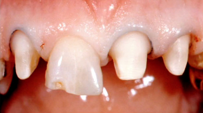 Loss of a Single Anterior Tooth
