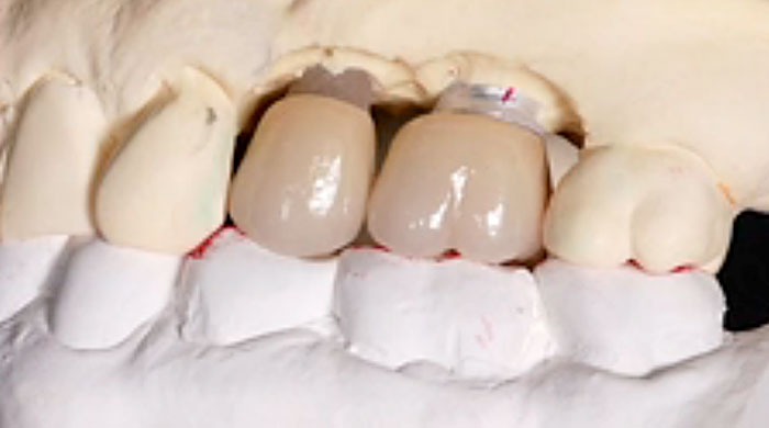 Bite Registration in Restorative Dentistry
