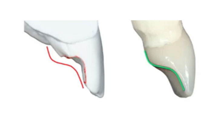 Designing Occlusion for Wear Patients