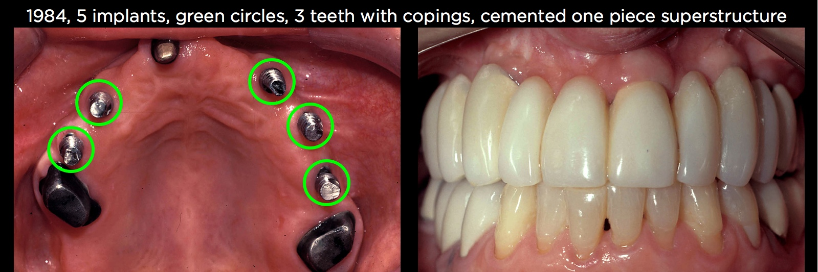 Connecting Teeth and Implants: Yes, No, Maybe? - Spear Education